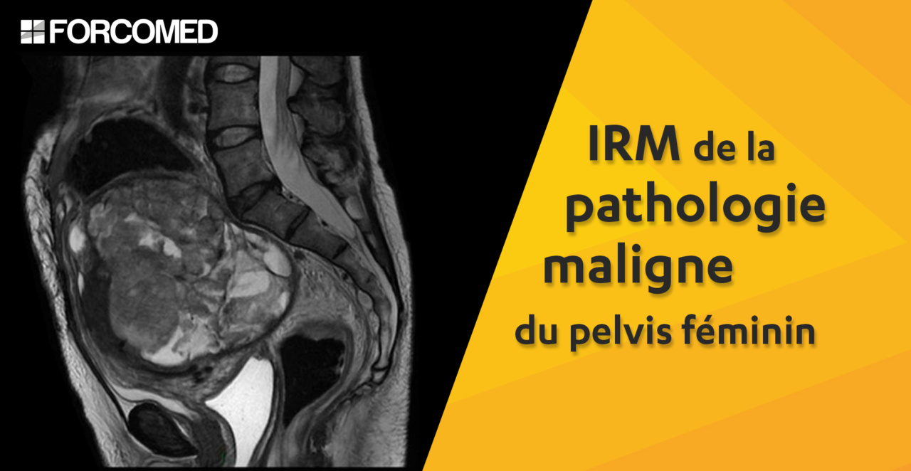 IRM de la pathologie maligne du pelvis féminin