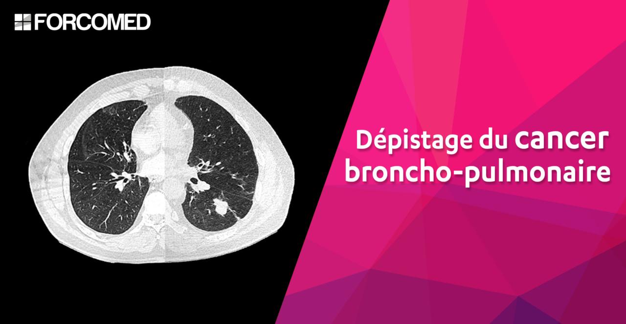 Dépistage cancer broncho-pulmonaire