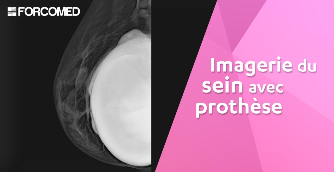 Imagerie du sein avec prothèse