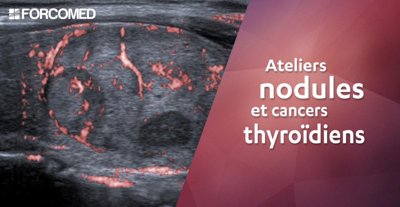 Ateliers nodules et cancers thyroidiens