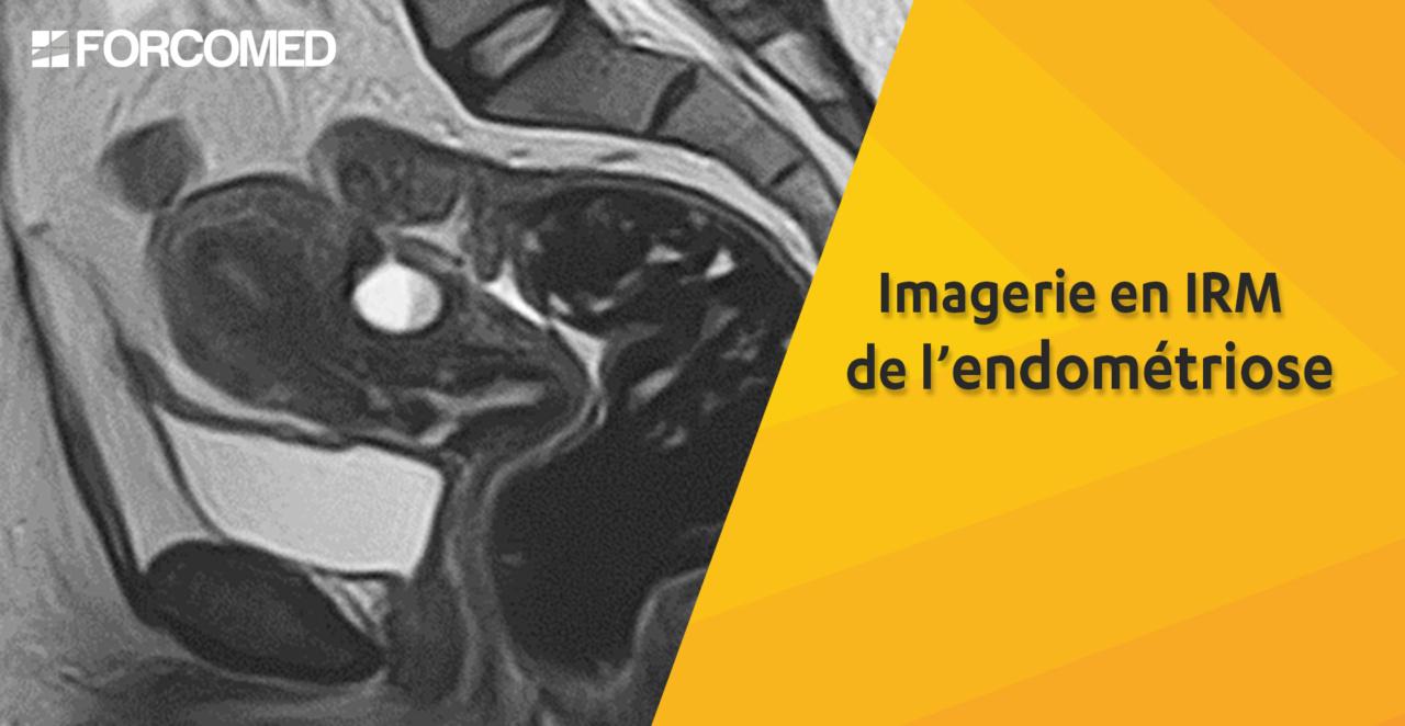 Imagerie en IRM de l'endométriose