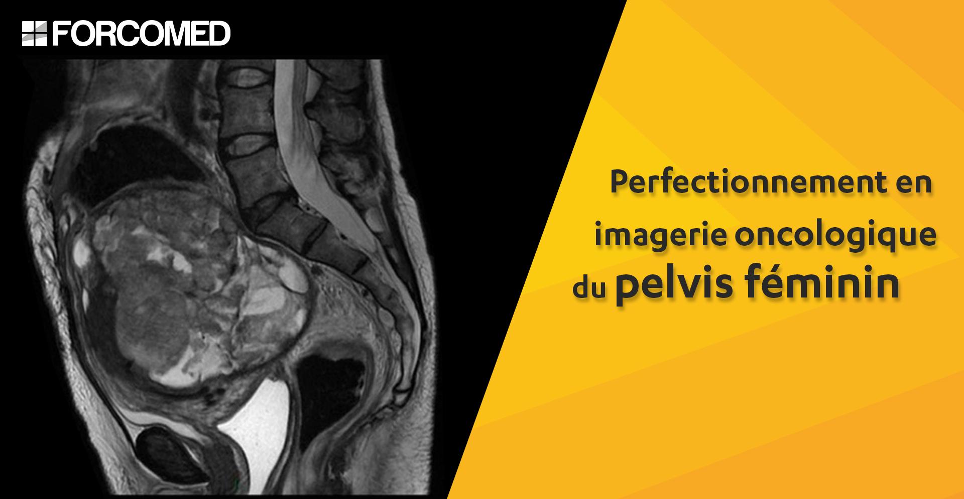 Perfectionnement en IRM oncologique du pelvis féminin