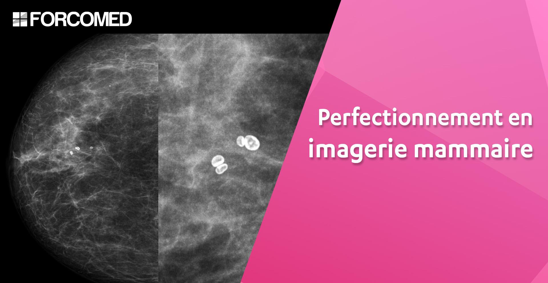Se former à la mammographie mammaire